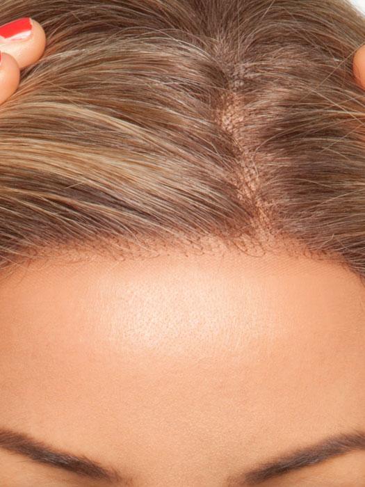 pelucas oncología